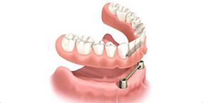自分の歯のように噛みやすい入れ歯